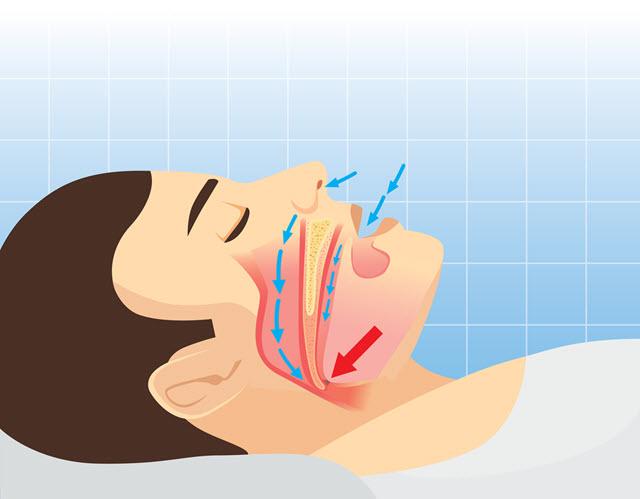 Human Airway Anatomy Snoring.
