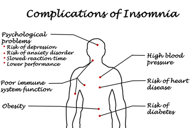 Complications of Insomnia.
