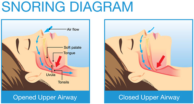Snoring Diagram. 1st picture, a drawing of woman's image, a diagram of opened upper airway. 2nd picture, a drawing of woman's image, a diagram of closed upper airway.